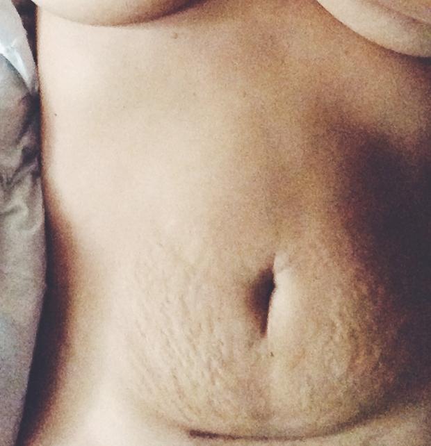 my-belly